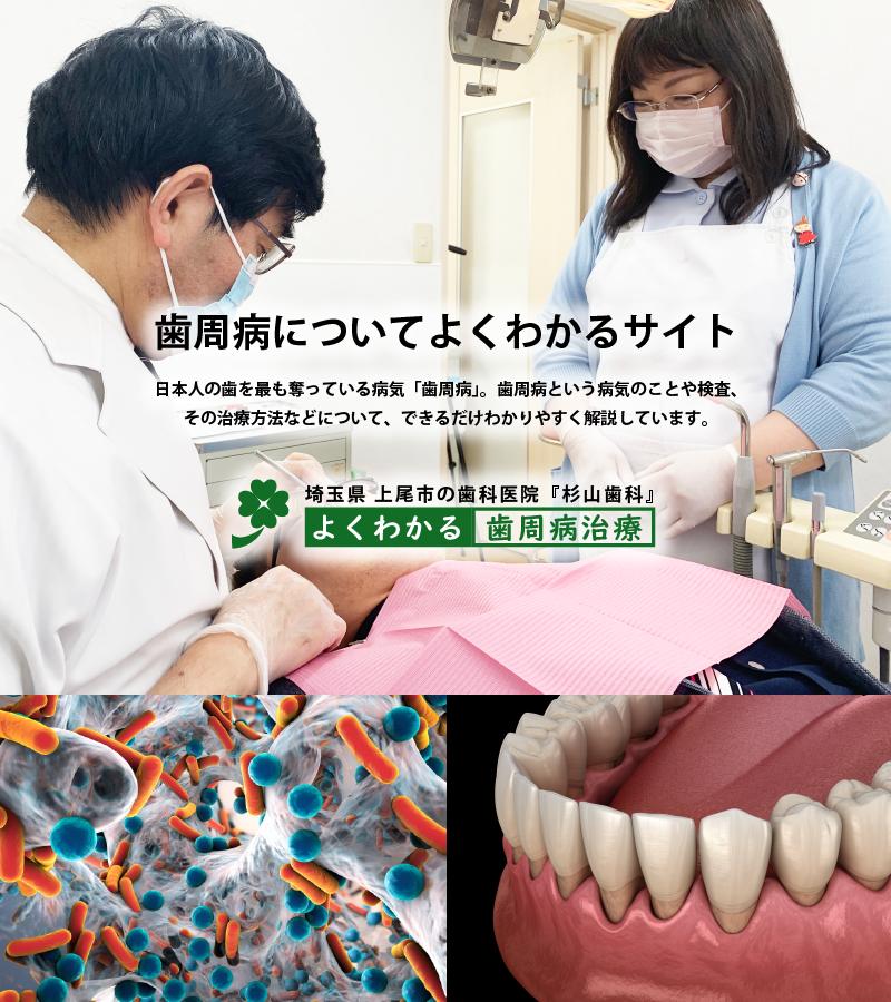 歯周病治療サイトのバナー
